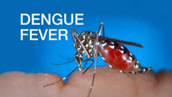 Dengue Fever Symptoms, Causes, Prevention And Treatment